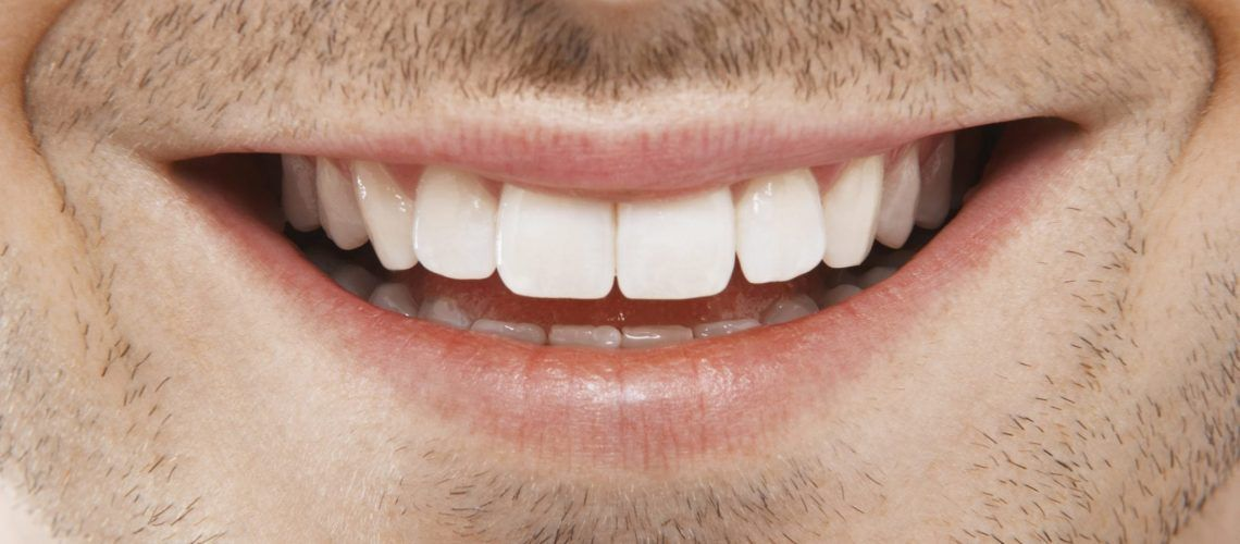 Man smiling with perfect teeth
